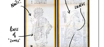 Chinese anatomical diagrams 1857-1859 labelled to show nails, lines of zones, body map, lungs and heart. The question asks what is he feeling?